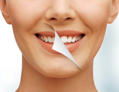 Diş Sağlığına Faydalı Süper Yiyecekler