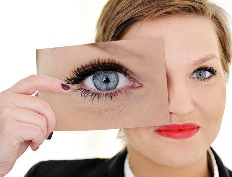 Göz Taşı Nedir ve Nasıl Tedavi Edilir